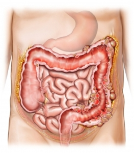 Infected pouches along the colon. (University of Virginia Health Systems)